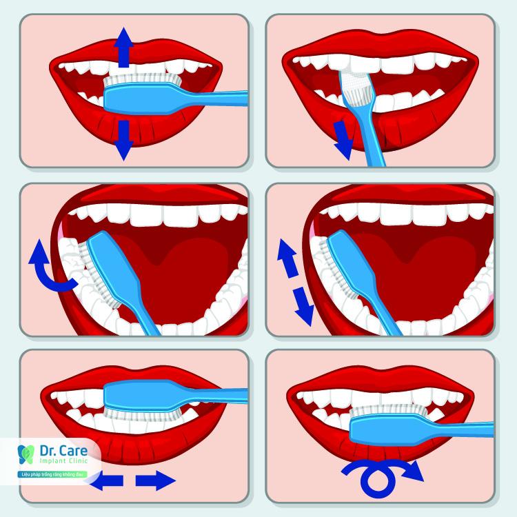 4 cách chăm sóc đơn giản tại nhà đẩy lùi sâu răng nhanh chóng   Dr. Care