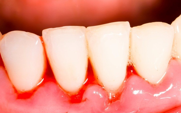 Chảy máu chân răng: Nguyên nhân và cách điều trị | Dr. Care
