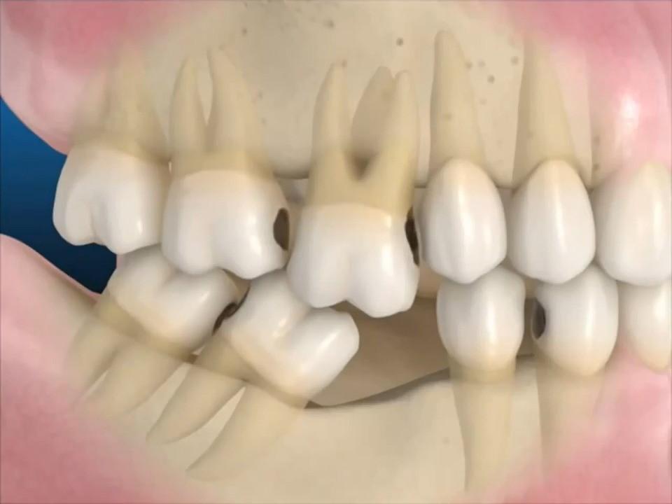 Kết quả hình ảnh cho maất răng
