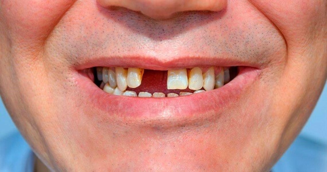 Giải đáp thắc mắc làm răng cửa giả giá bao nhiêu?   Dr. Care