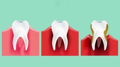 Những tác hại nặng nề nếu không vệ sinh răng miệng kỹ