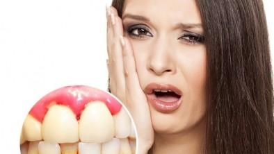 Chảy máu chân răng: Nguyên nhân và cách điều trị vĩnh viễn
