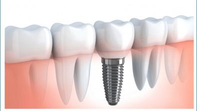 So sánh trồng răng Implant với cầu răng sứ và hàm tháo lắp cho người mất răng toàn hàm