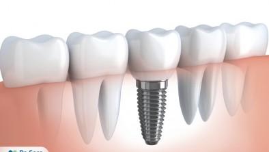 Trồng răng hàm đã mất như thế nào và giá bao nhiêu?