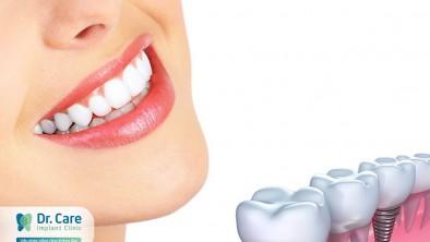 Làm răng giả giá rẻ ở đâu mà vẫn an toàn tại TP. HCM?