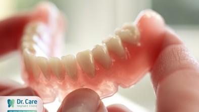 Răng giả tháo lắp toàn hàm: Tìm hiểu ưu nhược điểm