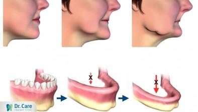 Có nên trồng răng giả không khi bị mất răng?