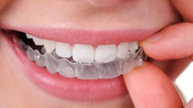 Tổng hợp cách làm trắng răng an toàn và hiệu quả