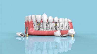 Làm răng giả có ảnh hưởng đến sức khoẻ không?