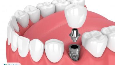 Trồng răng hàm số 6 bằng cấy ghép Implant bao nhiêu tiền?