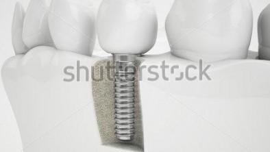 Phẫu thuật ghép xương hàm có đau không?