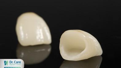 Tham khảo trồng răng sứ Mỹ giá bao nhiêu?