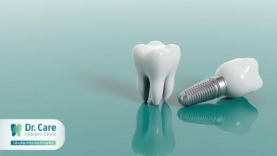 Có những loại răng giả nào? Ưu nhược điểm của từng loại là gì?