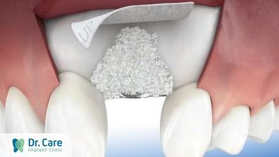 Phẫu thuật ghép xương trong trồng răng Implant