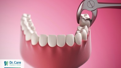 Trong nha khoa chữa sâu răng như thế nào?