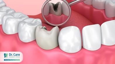 4 cách chăm sóc đơn giản tại nhà đẩy lùi sâu răng nhanh chóng