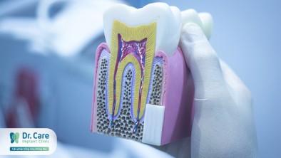 Nguyên nhân gây hại men răng và cách phòng ngừa