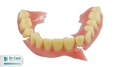 Răng giả bị rơi: Nguyên nhân và cách khắc phục hiệu quả