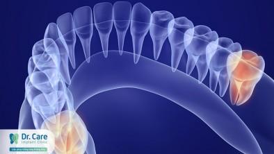 Mọc răng khôn có nguy hiểm không?