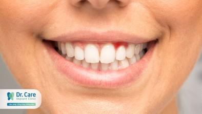 Nhận biết dấu hiệu viêm nướu răng sớm và cách phòng ngừa