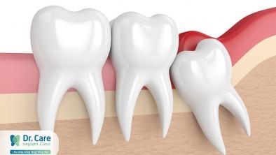 Răng khôn mọc ở vị trí nào và là răng số mấy?