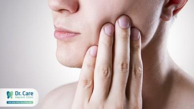 Cách khắc phục khi răng khôn mọc ngầm và lệch