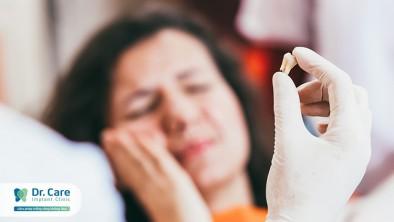 Thắc mắc nhổ răng khôn xong chảy máu bao lâu?