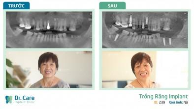 Trồng răng Implant chẳng đau như cô Trúc nghĩ