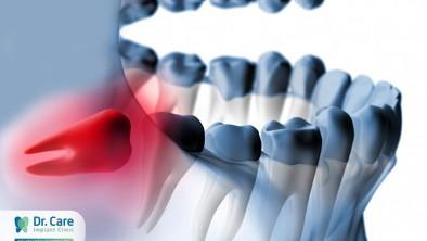 Giải đáp nhổ răng khôn hàm dưới có nguy hiểm không?