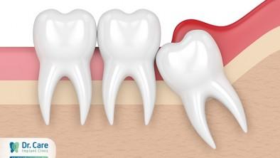 Sưng răng khôn có mủ: Nguyên nhân và cách khắc phục
