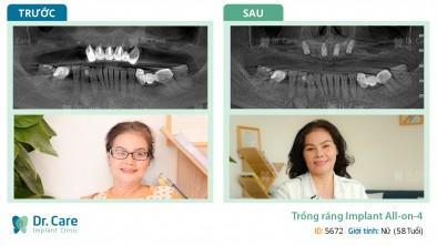 Trồng răng Implant chẳng đau gì, qua ngày hôm sau đã thấy êm rồi