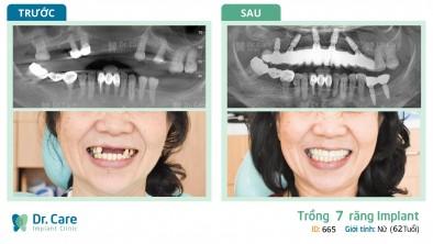 Mất răng cô sụt mất 5 ký - Trồng răng Implant cô tăng hẳn 2 ký chỉ trong vài tháng