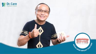"""Nhạc sĩ Kim Quang: """"Hóa ra trồng răng Implant nhẹ nhàng đến thế!"""""""