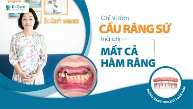 Cảnh báo: Càng trồng răng trễ càng mất nhiều tiền! Vì sao?