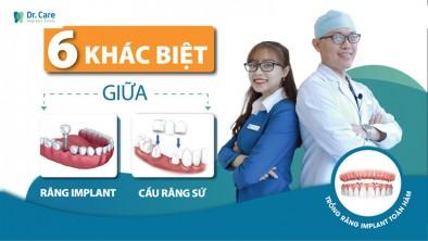 Khác biệt giữa răng Implant và cầu răng sứ