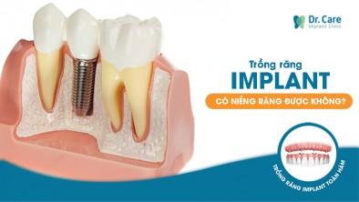 Trồng răng implant có niềng răng được không?