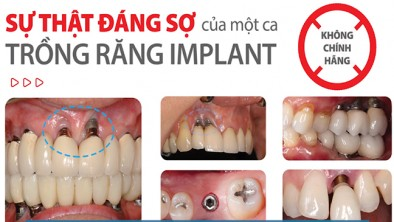 Trồng răng Implant giá rẻ ở tại TP. HCM có tốt không?