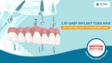 Cấy ghép implant toàn hàm - Giải phải hiệu quả cho người mất răng