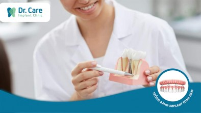 Kỹ thuật Implant là gì? Có nên trồng răng Implant khi bị mất răng?