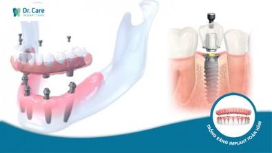 Trồng răng Implant cho người già có nguy hiểm không?