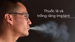 Tác hại của thuốc lá đối với phương pháp trồng răng Implant