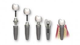 Quy trình trồng răng Implant (cấy ghép Implant) không đau tại Dr. Care