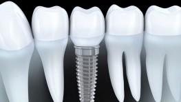Trồng răng vĩnh viễn phương pháp nào tốt nhất hiện nay?