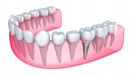 Thời gian cấy ghép Implant mất bao lâu?