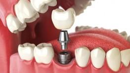 Chi phí trồng 1 cái răng giả bao nhiêu tiền?