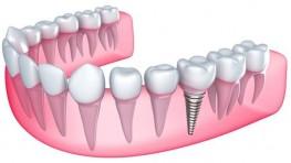 Răng cấm là gì? Trồng răng cấm bao nhiêu tiền