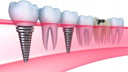 Trồng răng Implant có nguy hiểm không và yếu tố nào ảnh hưởng?