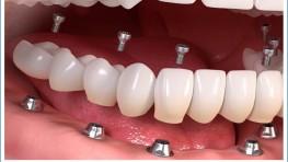 Trồng răng giả nguyên hàm giá bao nhiêu tiền?