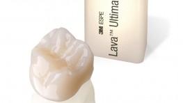 Trồng răng sứ vĩnh viễn giá bao nhiêu và loại nào tốt nhất?