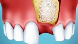 Phương pháp trồng răng hàm trên không đau và lâu bền nhất